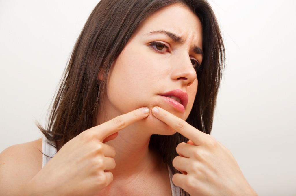 Как убрать прыщи с лица в домашних условиях: удалить быстро на лице