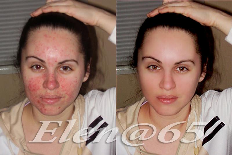 Девушка до и после применения борной кислоты