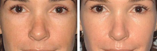 До и после карбонового пилинга лица