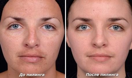 До и после карбонового пиллинга лица