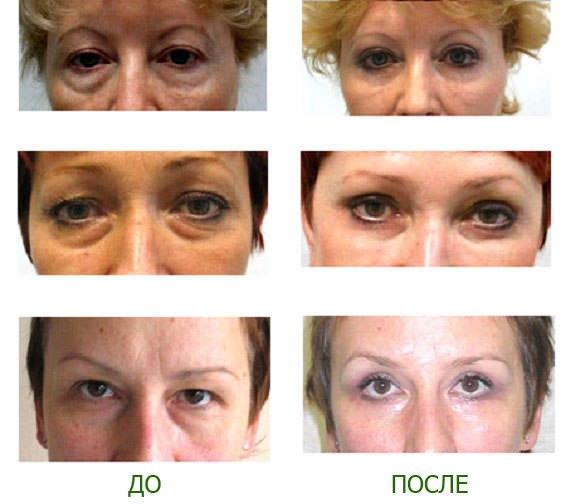 До и после косметики Дешели