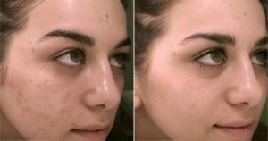 До и после поверхностного пилинга лица