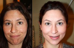 До и после срединного пилинга лица
