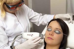 Процедура карбонового пилинга лица