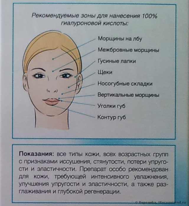 Рекомендуемые зоны нанесения гиалуроновой кислоты