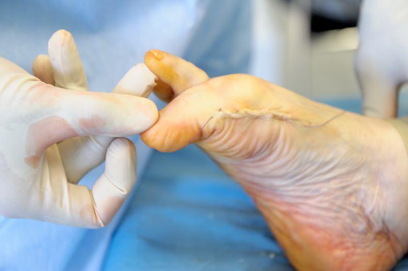 Вид стопы сразу после операции