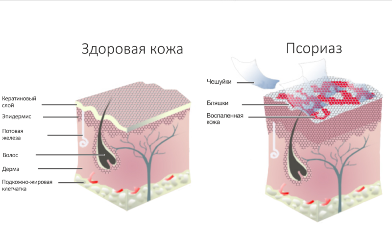 Строение здоровой кожи и больной псориазом