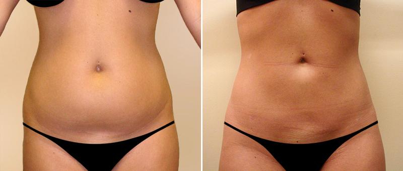 До и после процедуры lpg