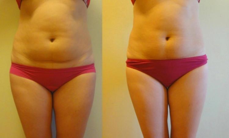 Тело до и после lpg