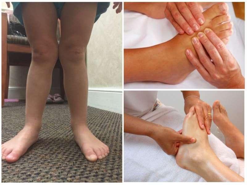 Массаж ног при вальгусе