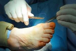 Наложение швов после операции