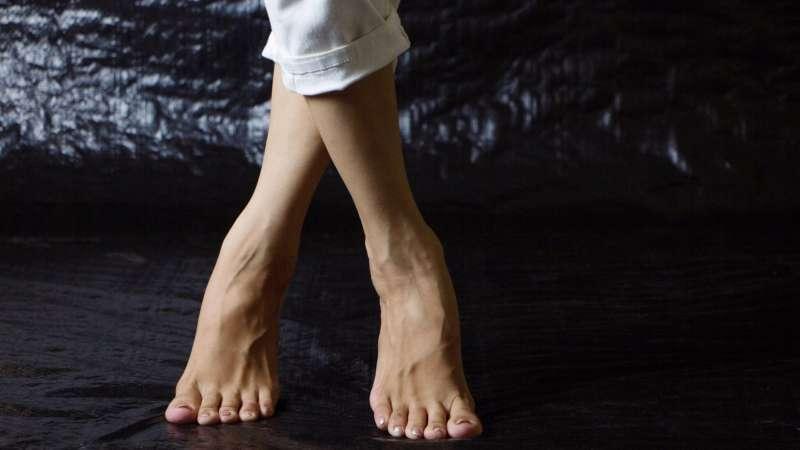 Вальгусная деформация коленных суставов с фото